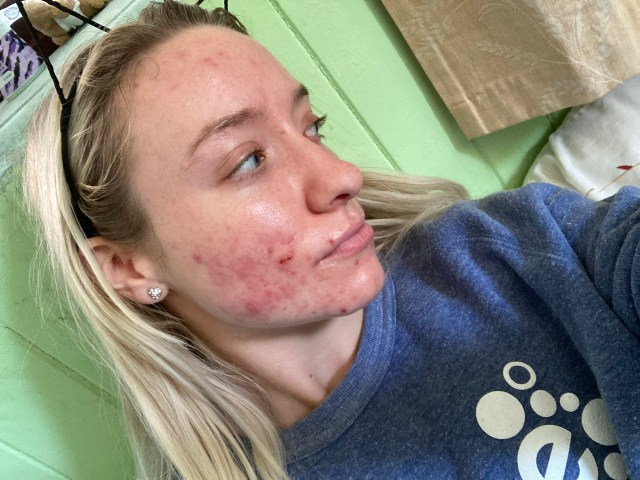 Taylor says at some points she didn't want to leave her room due to her skin