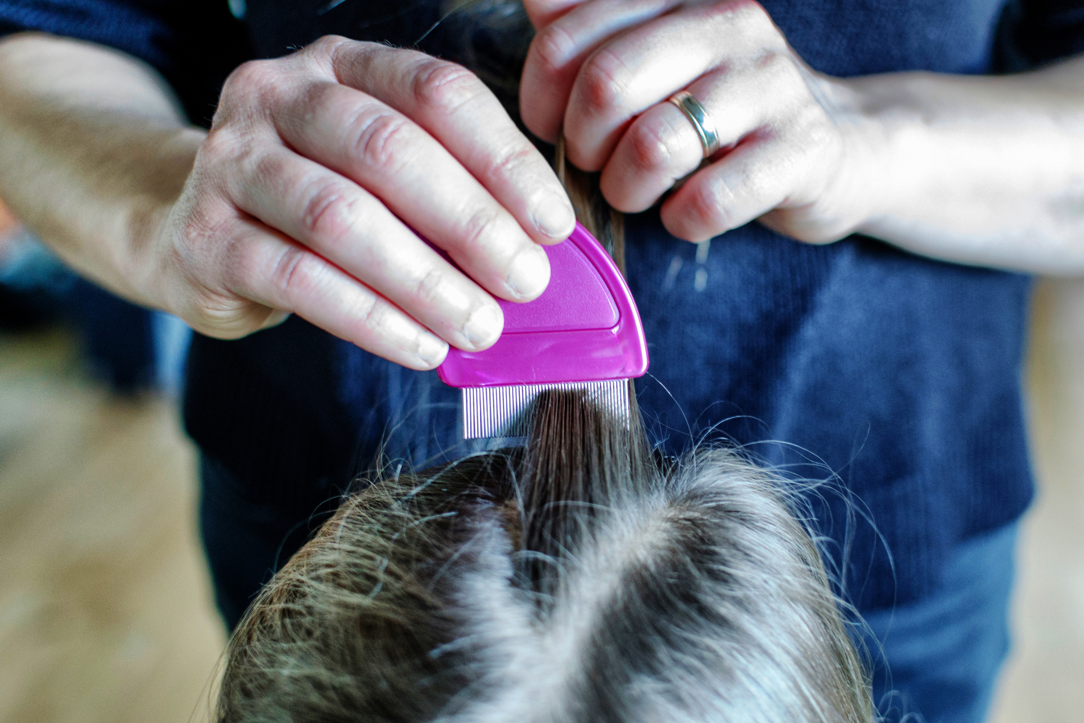 Get free head-lice treatment with the NHS Minor Ailment Scheme