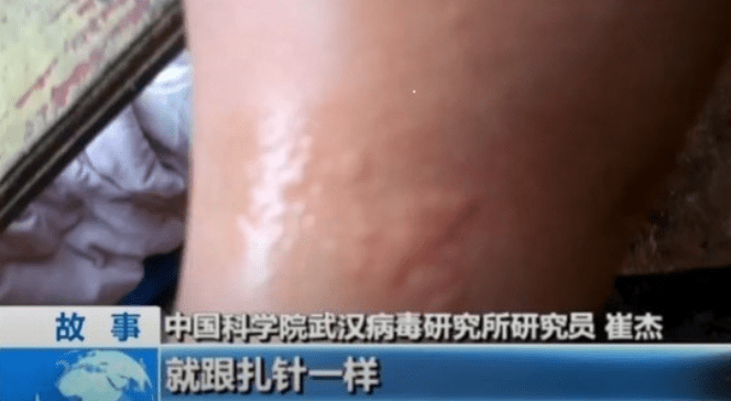 Swelling on one researcher's limb after being bitten during experiments