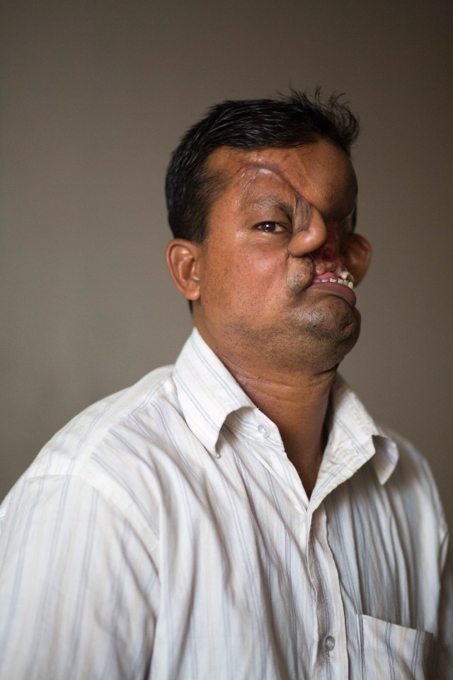 Hashmot Ali, 40, was attacked by a tiger and lost half his face in 1995