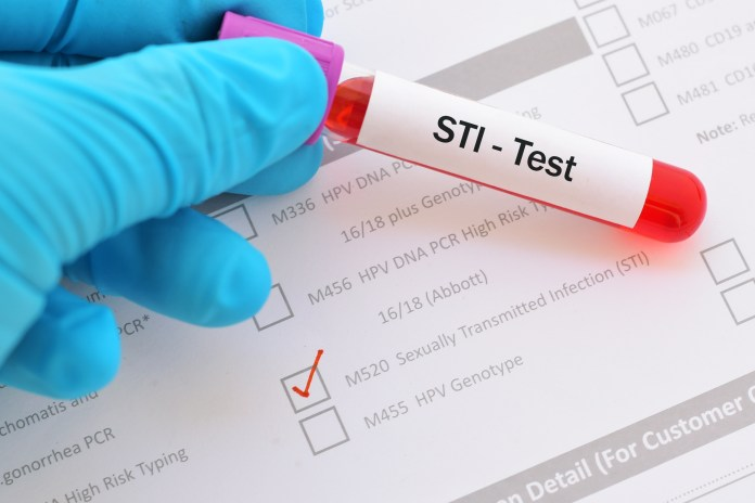 You can do home STI tests that cover a broad range of infections