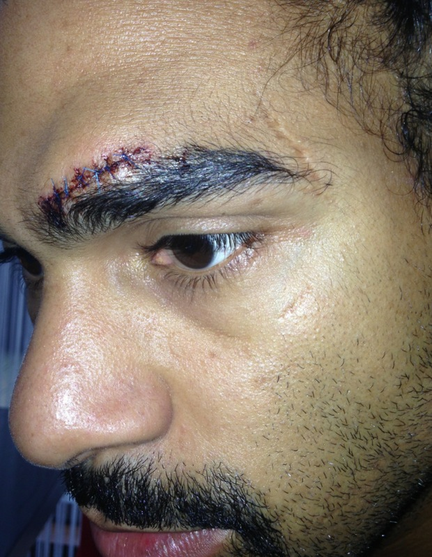 But a cut above his left eye scuppered the fight