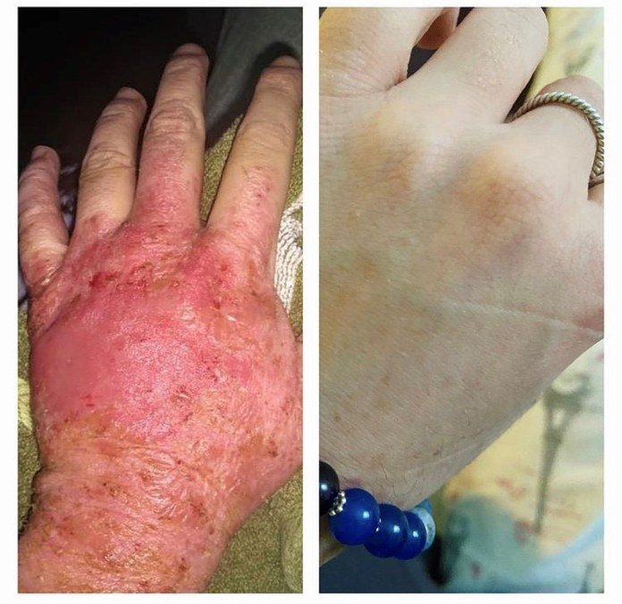 Getting out of creams made a huge difference for Nina.  On the left her hand is red and swollen in 2015 and on the right in 2021 after getting rid of the creams, she no longer has a rash