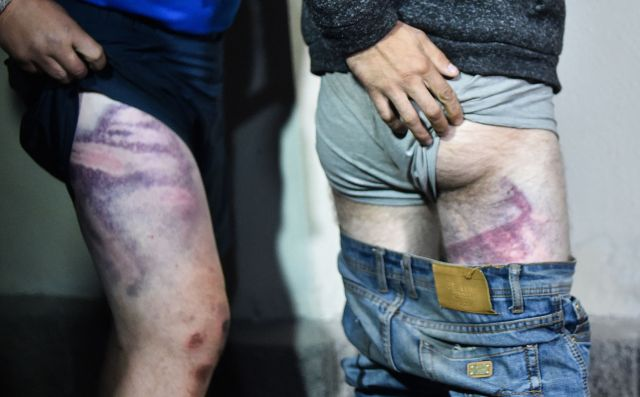 The bruised legs of men who were released from the Okrestina prison in August
