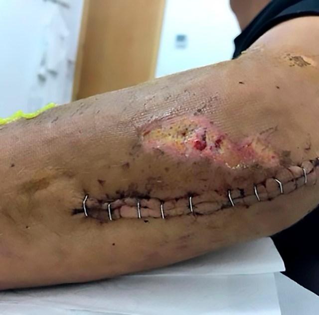 Spaniard Luis Leon Sanchez's arm after he crashed into a sign post during the Tour de France