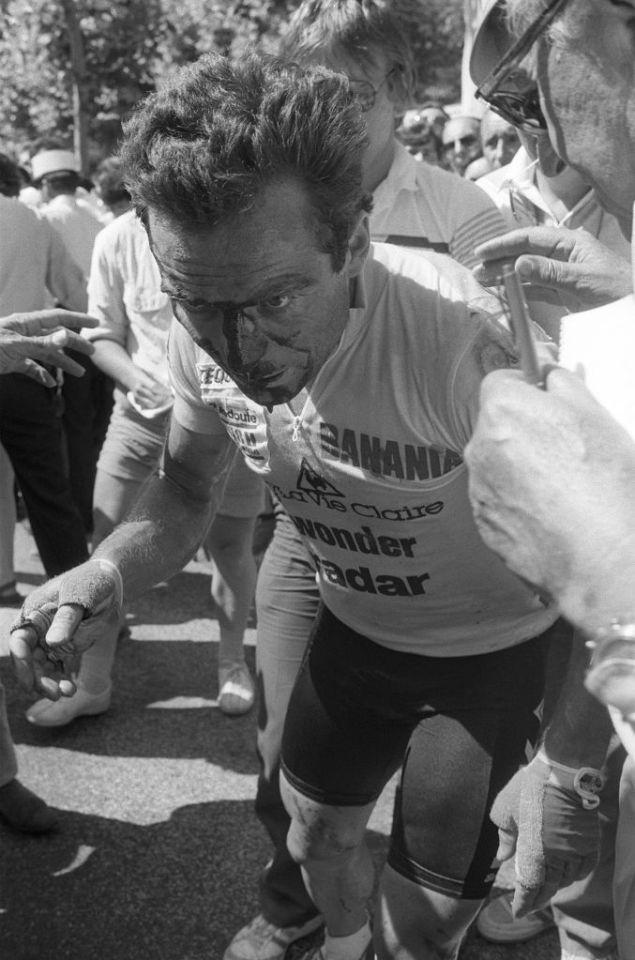 A broken nose did not deter Bernard Hinault from riding to glory