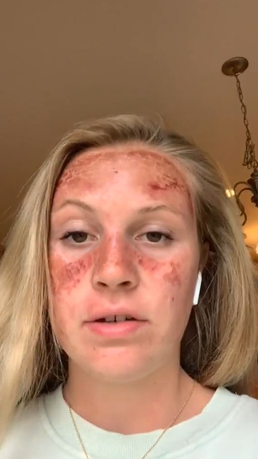 This TikToker's facial sunburn looked extremely painful
