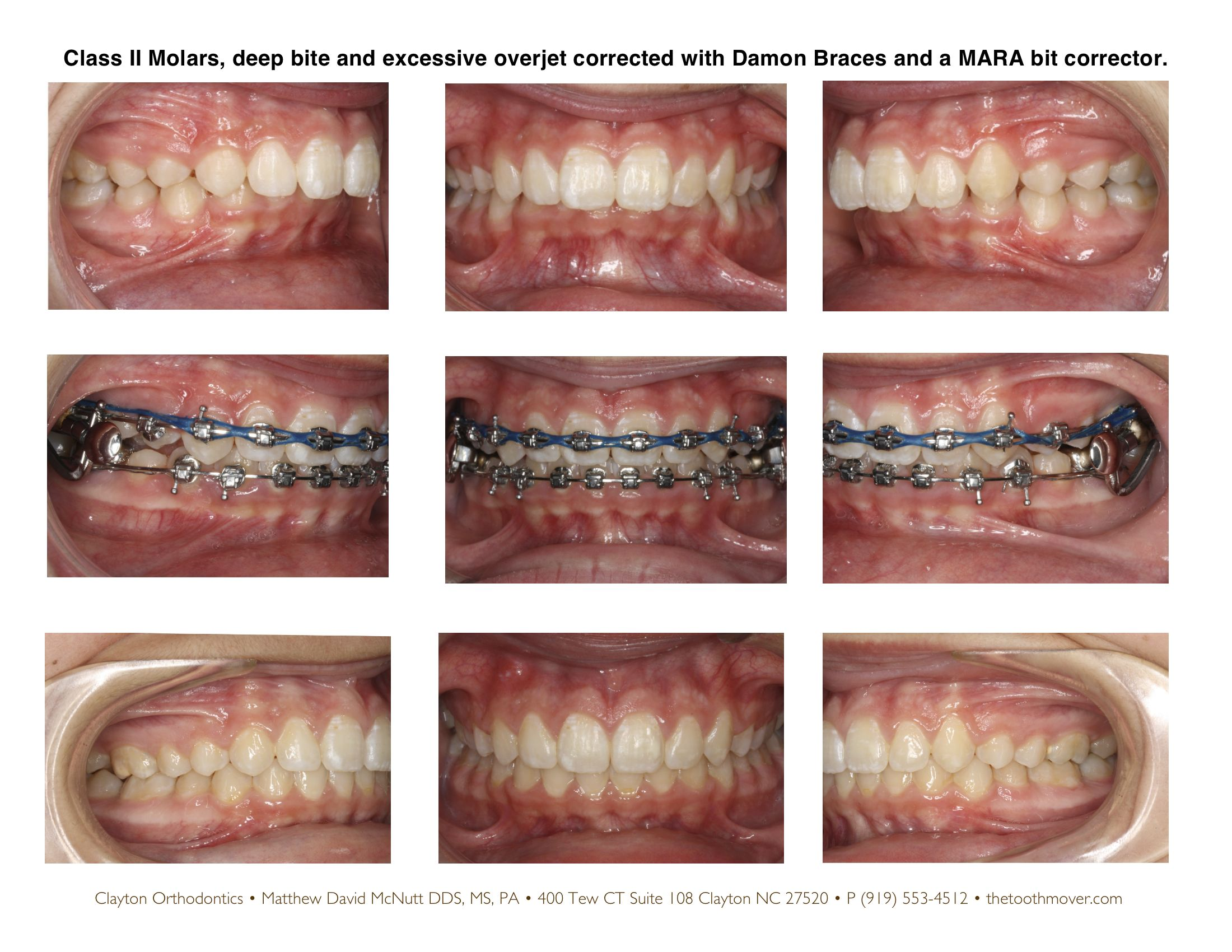Deep Bite Correction Before And After