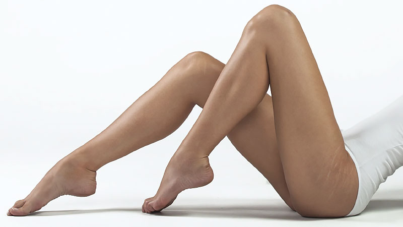 How to Get Rid of Stretch Marks for Good