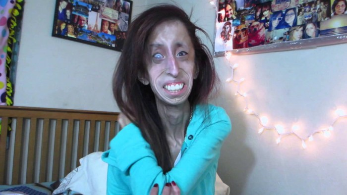 Lizzie Velasquez  (Photo Credit: YouTube)