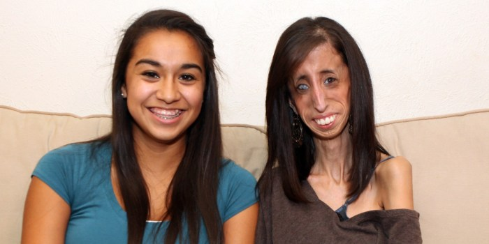 AUSTIN, TX - UNDATED: Lizzie Velasquez poses for a photograph with a friend in Austin, Texas. PHOTOGRAPH BY Laurentiu Garofeanu / Barcroft USA