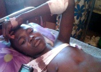 A survivor of the Yobe massacre | Photo: Vanguard