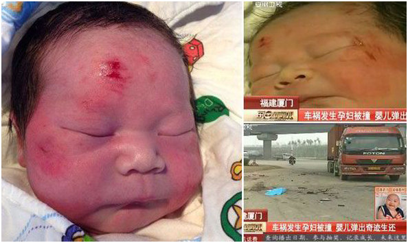 These are the incredible images of a miracle baby that was catapulted out from his pregnant mother as she was run over by a truck.