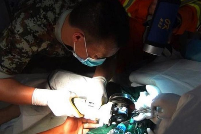 Doctors and firefighters battle to cut off the pipe from Lian Tien's privates