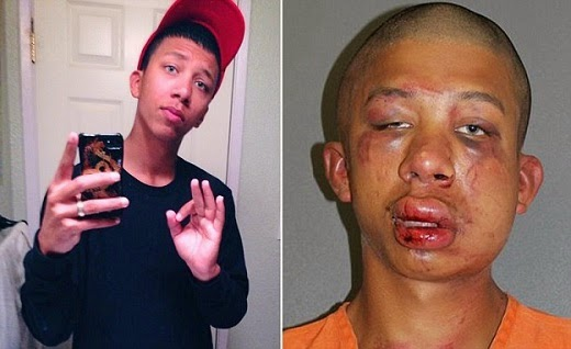 Raymond Frolander, the 18-year-old man beaten by a father after the dad claimed he saw him abusing his child before and after the beating [Phot Credit: qwikgist.com]