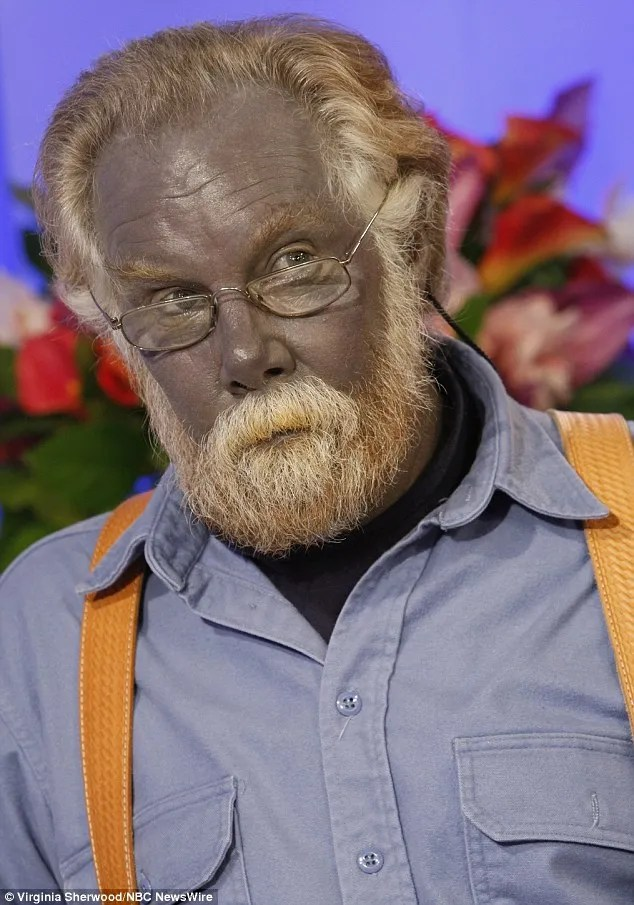 Paul Karason  became famous after an appearance on the 'Today' show, where he explained how he had used silver internally and externally to treat dermatitis on his face. (Photo Credit: Getty Images)
