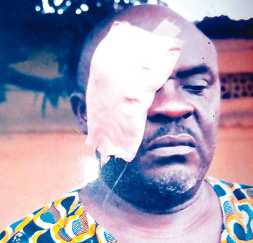 Emmanuel Mbilla after the attack on Saturday, February 22, 2014 by a naval official Unaji Enejor in Kirikiri, Lagos. (Photo Credit: The Punch)