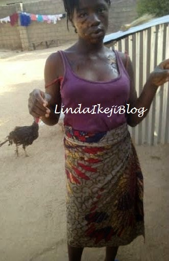 Ramatu was attacked by her elder sister with hot water after a heated argument. (Photo Credit: Linda Ikeji Blog)
