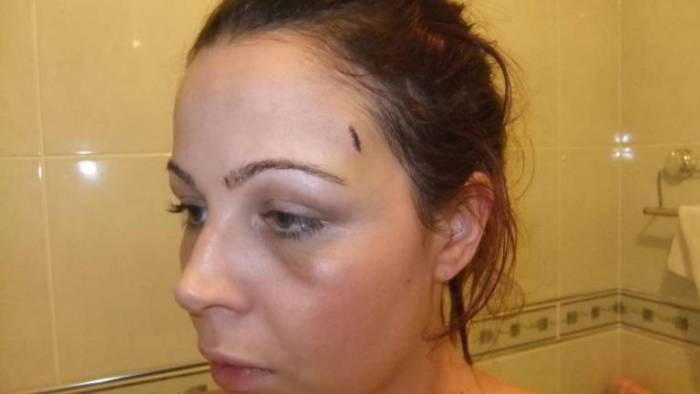 Sophie Lazell whose boyfriend tied her naked to a tree sustained cuts and bruises after running through bushes for an hour in her escape bid. (Photo Credit: PA)