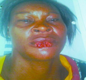 Ada Joy had part of her lower lip bitten off by her friend, Chioma Ejiofor,32, at Canal Extension, off Itanola Drive, Ajao Estate area of Lagos state over scuffle for an alleged gossip. (Photo Credit: PM News)