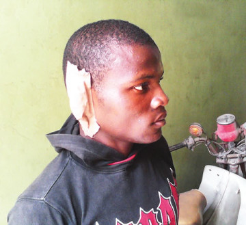 A man, Udeme Inim, has bitten off the right ear of his son, Christopher BAssey, after he tried to interfere during a fight between him and his mum. (Photo Credit: Ynaija)