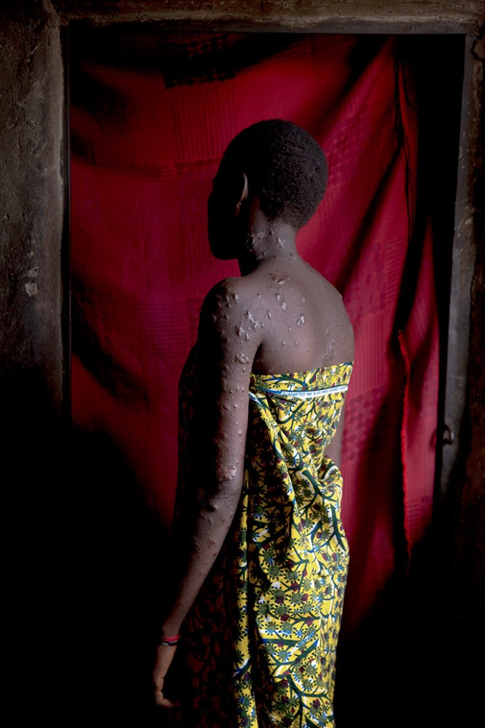 Janet Elisha Daniang, 15, is photographed in her home in Kaduna, Nigeria on April 4, 2013. Daniang bears the scars of the St. Rita Catholic church bombing that took place on October 28, 2012 in Kaduna, where 4 people died and 192 were injured. | Ed Kashi
