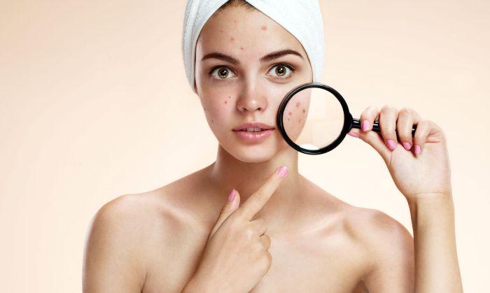 find treatment acne oliy skin