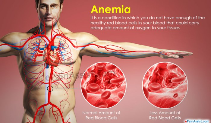 Anemia Blood cells