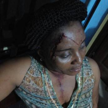 Alleged wounded bystander | Photo provided by Nigerian Army