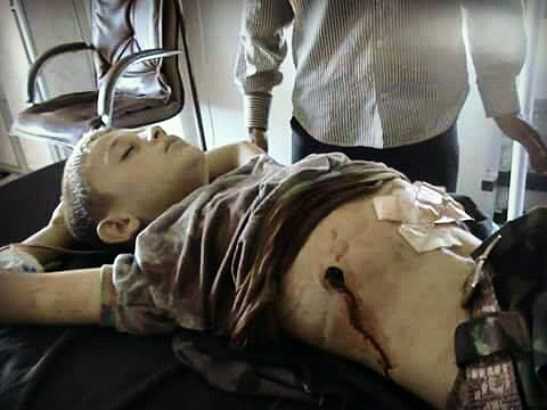 7-year-old-shot-by-us-backed
