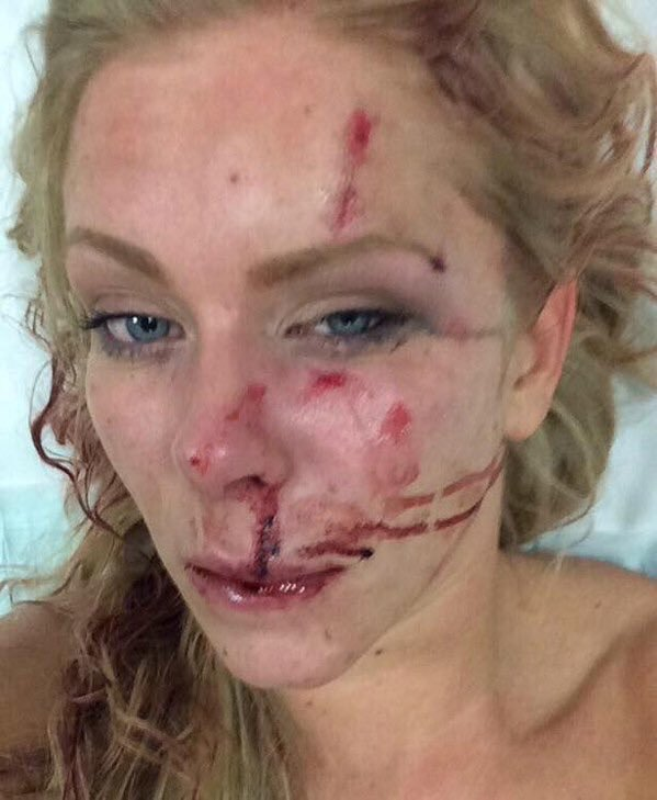 Another Swedish rape victim. It should be noted that we have withheld posting some photos of rape victims, which are far more shocking. Click to enlarge