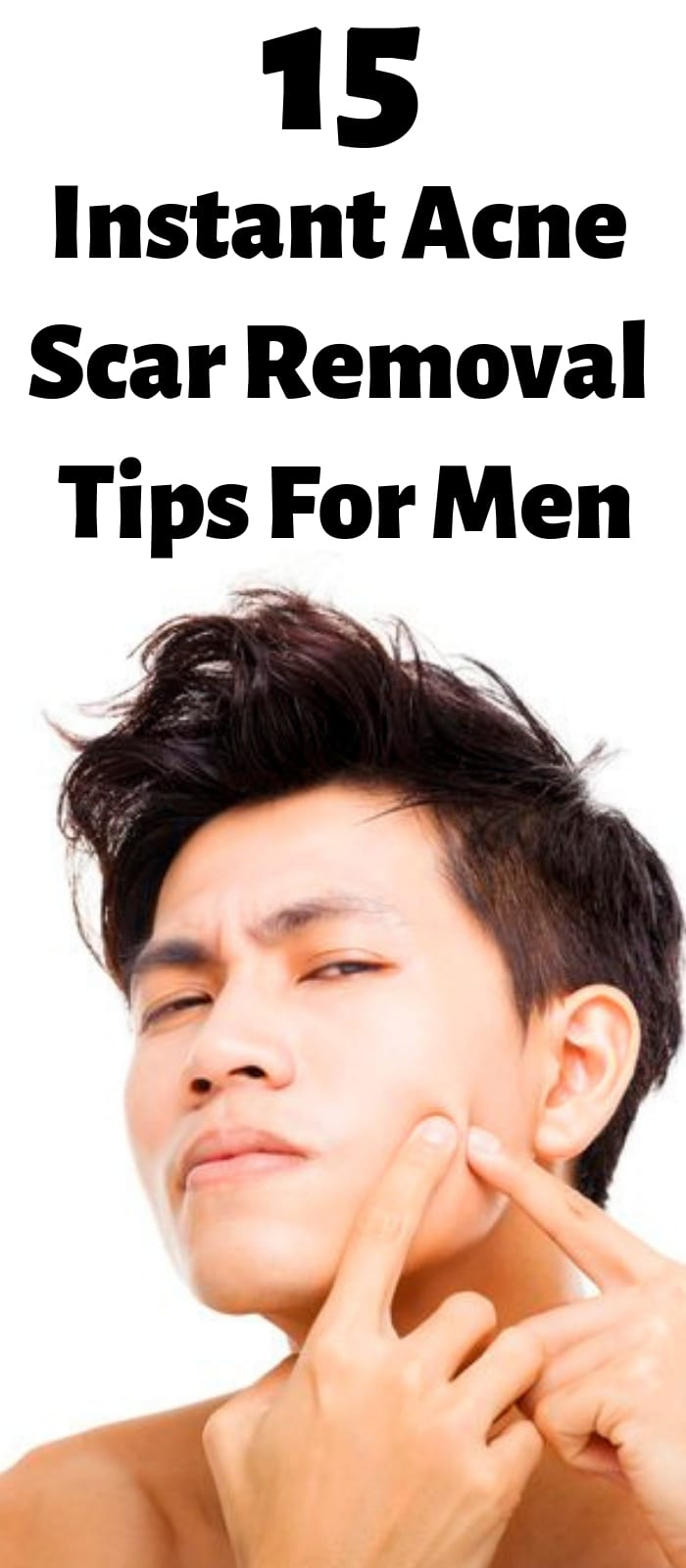 15 Instant Acne Scar Removal Tips For Men