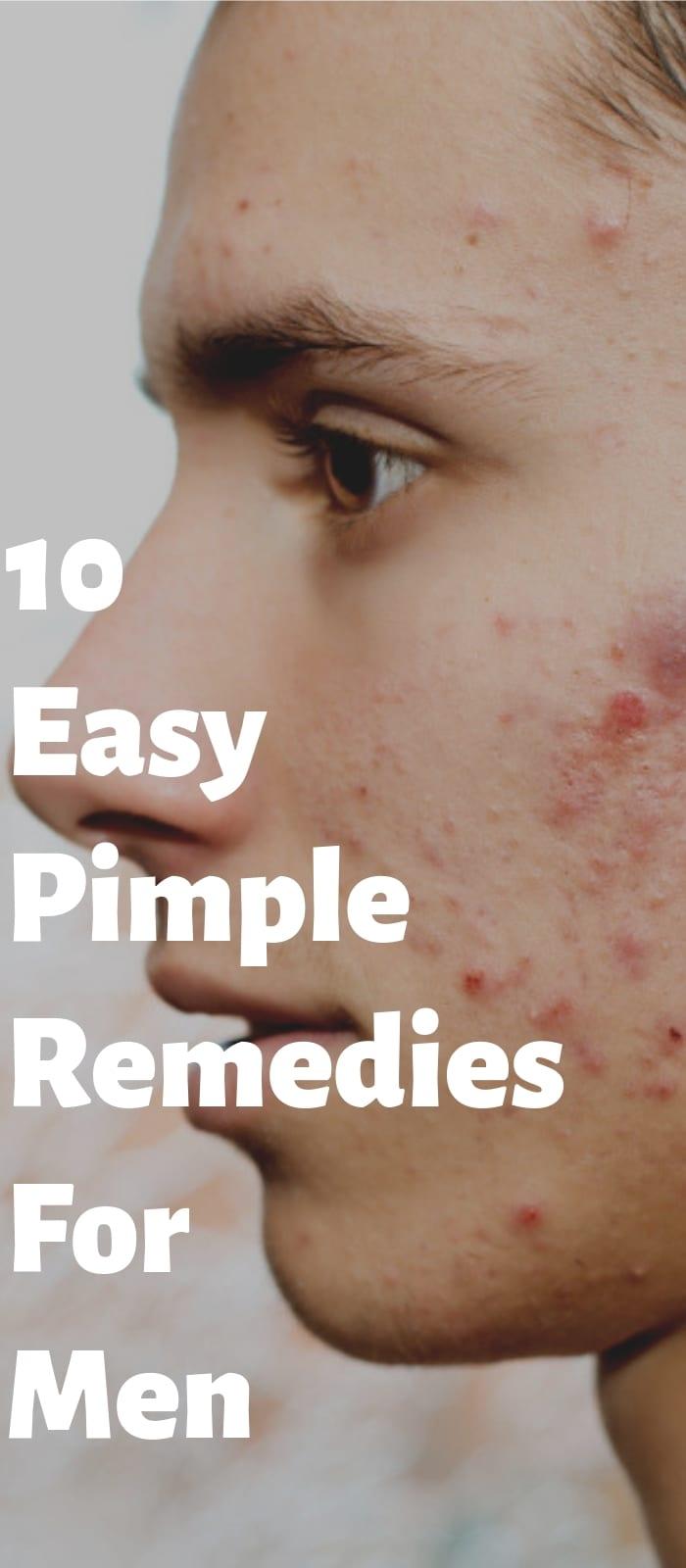10 Simple Pimple Remedies For Men.