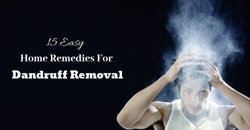 15 Easy Home Remedies For Dandruff Removal