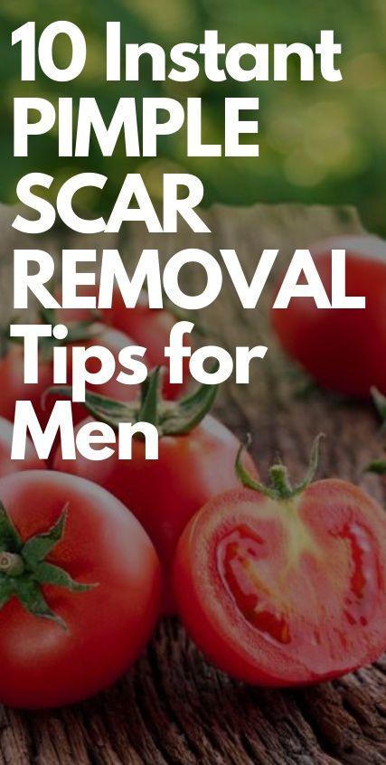 10 Instant Pimple Scar Removal Tips for Men