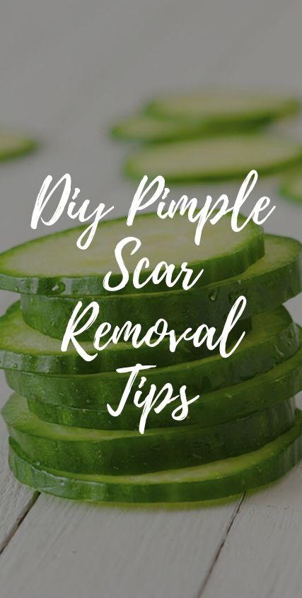DIY PIMPLE SCAR REMOVAL TIPS