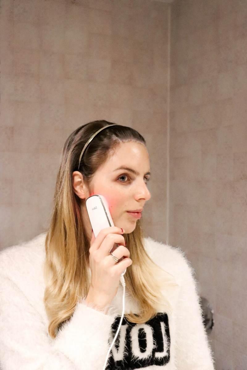 Silk'n Titan Skin Tightening Treatment | 10 Week Update - Silk'n Titan Skin Tightening Treatment by Vancouver beauty blogger The Urban Umbrella