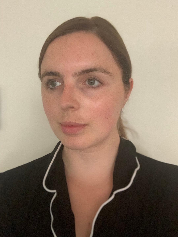 late-20s-skincare-acne