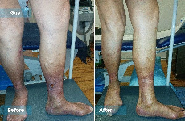Guy - Varicose Vein Treatment