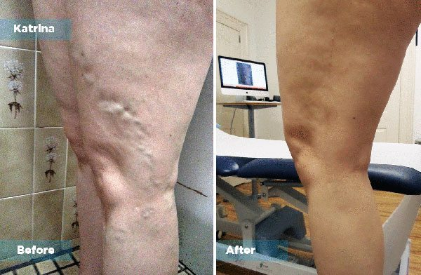 Katrina - Varicose Vein Treatment
