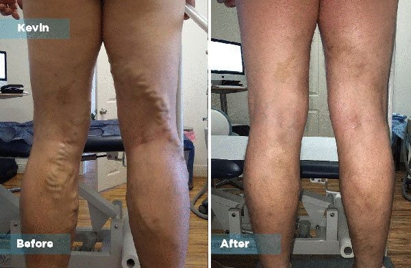 Kevin - Varicose Vein Treatment