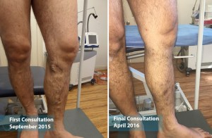 Treatment of varicose veins with laser therapy on a male patient at The Vein Institute