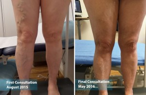 Female example of varicose vein treatment at the Vein Institute