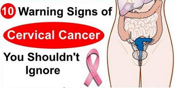 10 Warning Signs of Cervical Cancer You Must Not