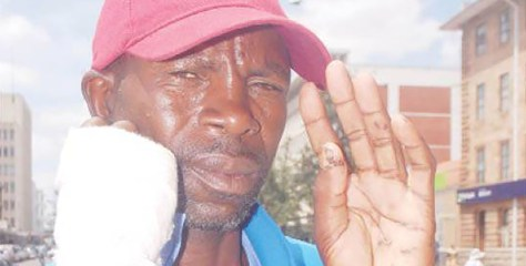Zim man who fought off a leopard with bare hands arrested for poaching