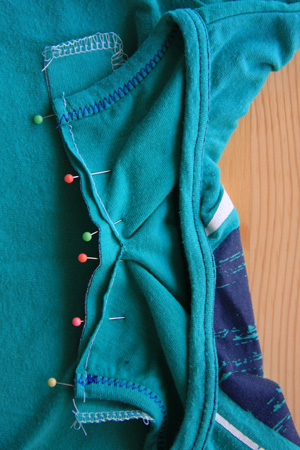 07-Button Placket