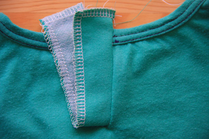 09-Button Placket