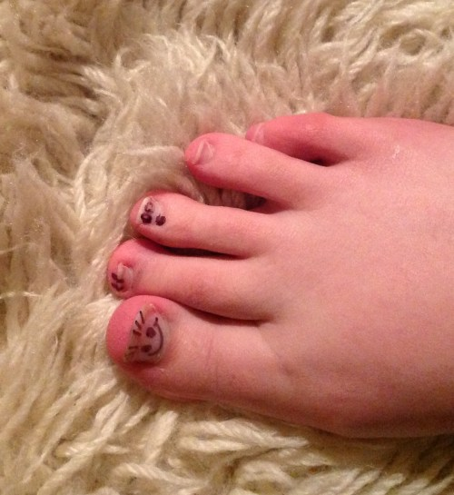 Middle Toe is shocked by the development of smiley faces on toughened keratin that sits on top of distal phalanges.