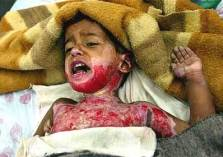 Iraqi children maimed terror