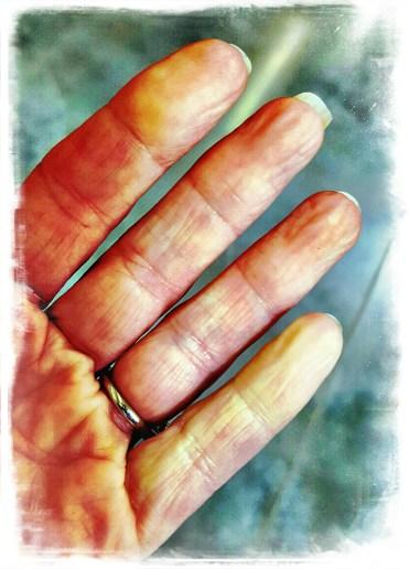 Reynaud's Disease www.thisautoimmunelife.com